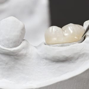 A dental crown