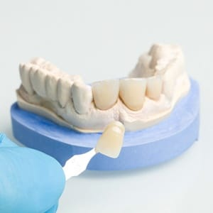 porcelain veneers being placed over the model of a tooth